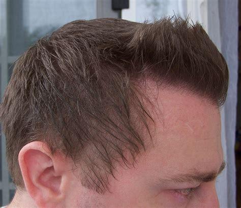 joypia yorkshire haircuts hair loss help forums r100 image image image image