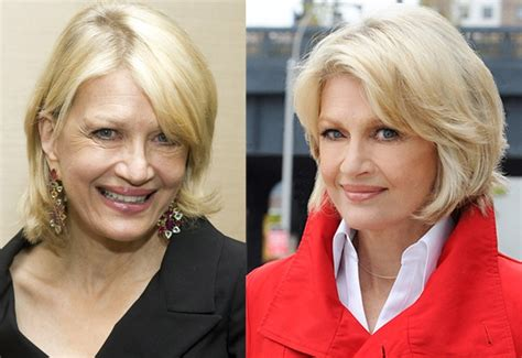 Diane Is Terrified Of Plastic Surgery by Diane Sawyer Aging Gracefully With Facelift