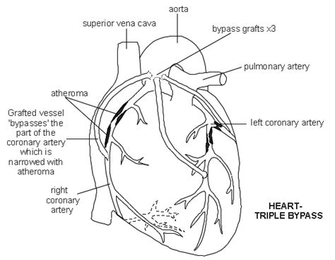 diagram of coronary arteries coronary artery bypass diagram patient co uk