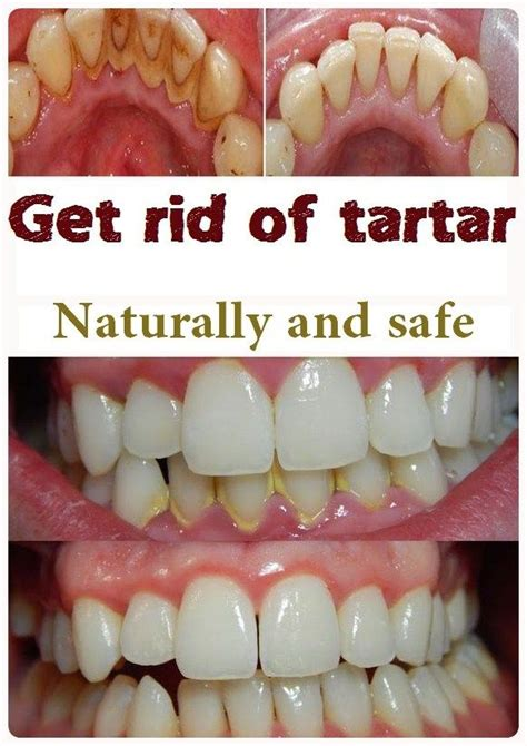 how to get tartar teeth at home 25 best ideas about tartar removal on how to