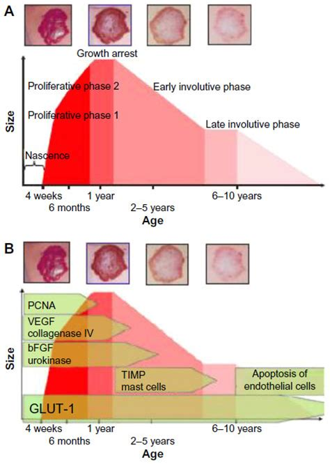 growth pattern classification full text congenital vascular anomalies current