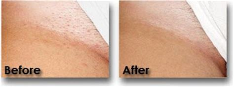 wife showing grey pubic hair in public before after laser hair removal pictures laser hair