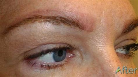 tattoo removal saline do you do 3d embroidery permanent makeup eyebrows