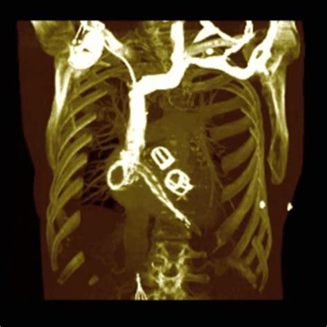 morbo di hashimoto alimentazione angiografia salute sicilia salute alimentazione
