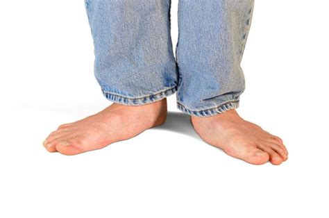 Arch L A B by What Are Flat Feet And What Can We Do About Them