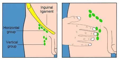 lymph node locations groin diagram pvs part 1 at touro college studyblue