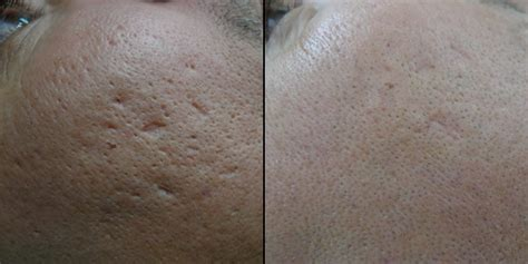 acne scarring treatment london acne scars