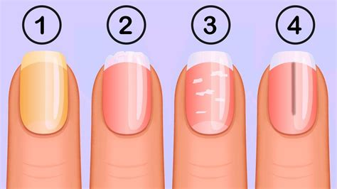 Nail Things by 5 Things That Your Nails Say About Your Health Gjm News