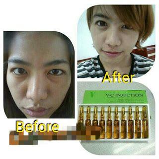 Asli Murah A 056 Apron cara pakai v c injection asli indonesia