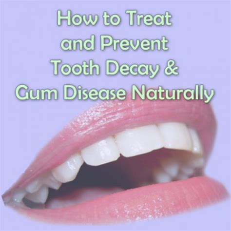 how to stop teeth remedies to prevent and heal gum disease naturally