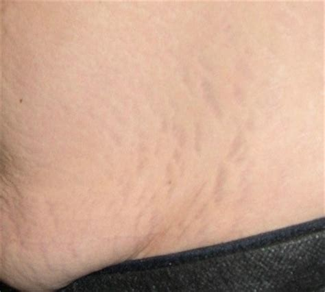 light therapy stretch marks stretch removal pulse light clinic