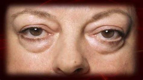 imagenes de ojos inflamados como quitar las ojeras definitivamente bolsas en los