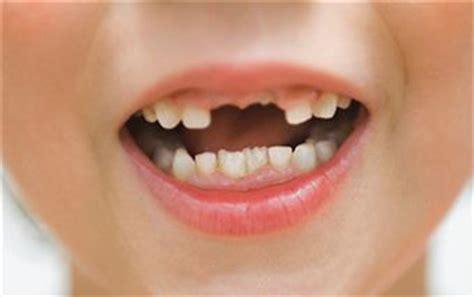 losing teeth losing baby teeth