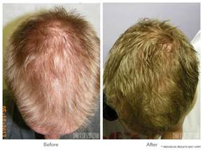 hair loss in 60 year hair restoration prp coolsculpting los angeles clinic