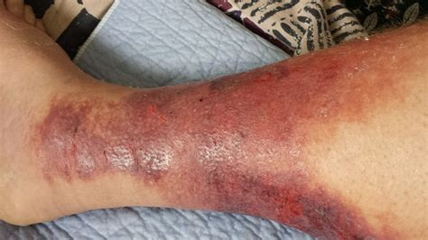 bubbamike s ramblings cellulitis warning graphic photos