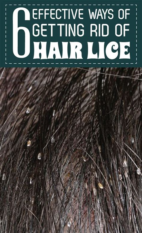 6 effective ways of getting rid of hair lice remedies