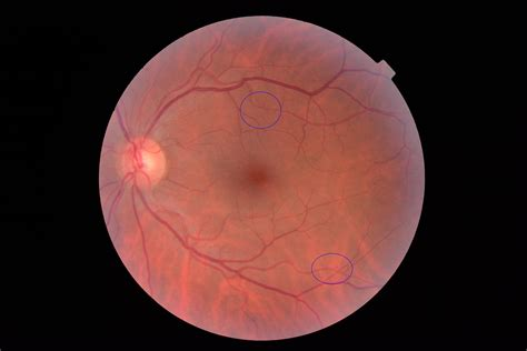 background diabetic retinopathy results south tees hospitals nhs foundation trust