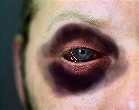 black eyes 1000 images about shiners on pinterest eyes fight club