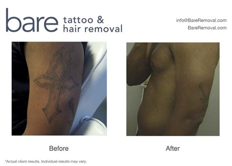 african american tattoo removal before after 183 bareremoval