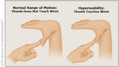 a to z: benign joint hypermobility syndrome connecticut