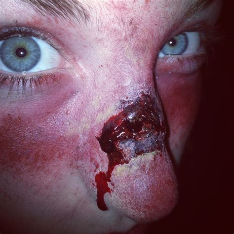scab on s nose hockey puck to the nose ouch blood scab bruise nose mua makeup