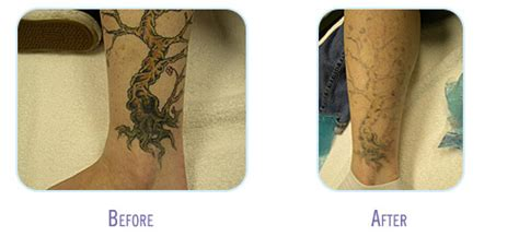 laser tattoo removal raleigh nc laser removal 4 bodylase 174 med spa raleigh cary nc