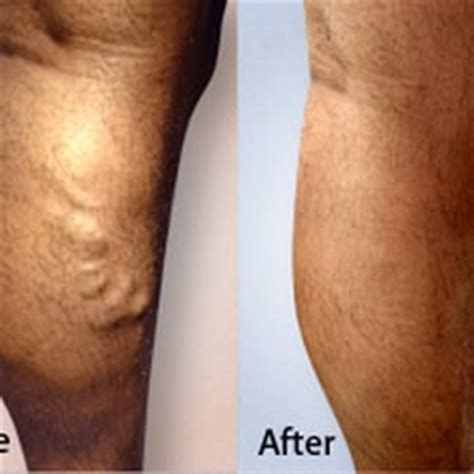 new spider vein treatment dr layke advanced varicose vein treatments of manhattan 93 photos