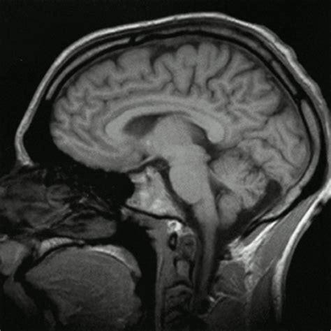 imagenes medicas resonancia magnetica 191 en qu 233 consiste una resonancia magn 233 tica nuclear rmn