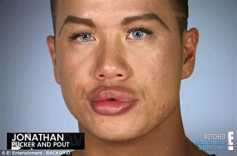 jonathan ken doll botched jonathan asks for more lip injections daily