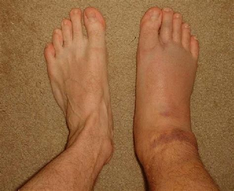how long will my feet be swollen after c section swollen ankles treatment pictures pregnancy symptoms