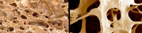 test falso positivo cause vero e falso sull osteoporosi vero o falso click to care