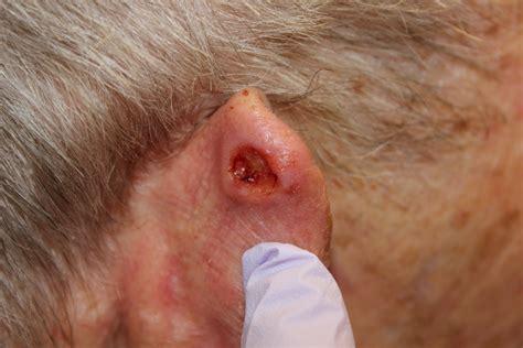 ear tumor scottsdale dr mussman