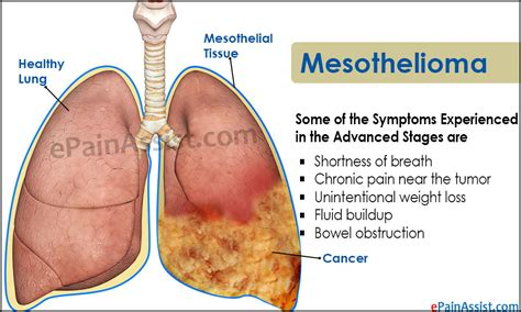 Mesothelioma Compensation by Mesothelioma Compensation Center Now Urges And Gas