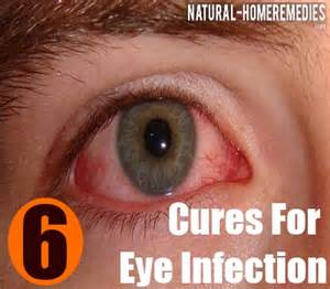 home remedy for eye infection 6 cures for eye infection how to cure eye
