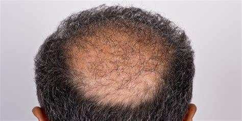 Magnet Kulkas Oleh Oleh Negara Dari Republik Ceko ceko negara dengan pria botak terbanyak di dunia ki mhu