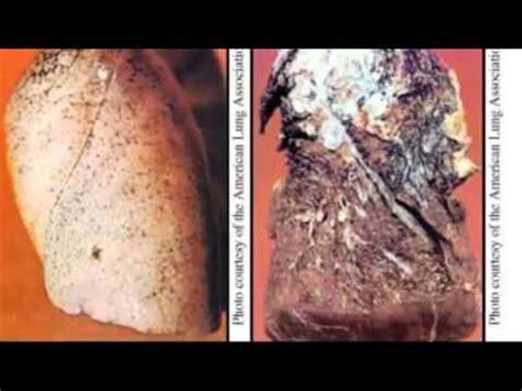 amlodipine besylate side effects youtube