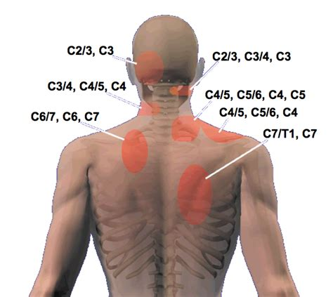 neck pain after c section gallery c2 c3 pain symptoms anatomy diagram charts
