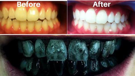 teeth whitening  home   minutes whiten  yellow
