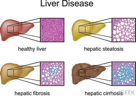 liver disease what are the different types of liver disease with pictures