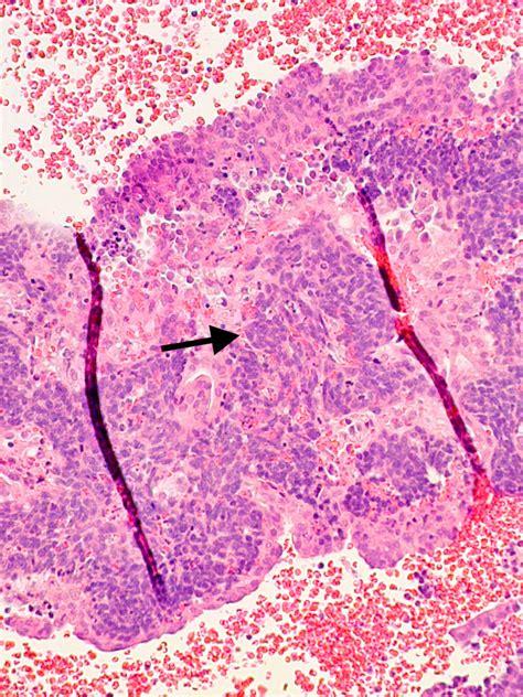 Shedding Endometrium by The Endometrial Cycle Glowm