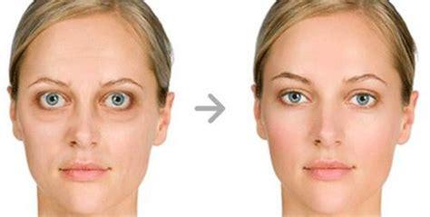 morbo di basedow alimentazione l oftalmopatia basedowiana 232 una patologia morbo di