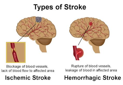the stroke of eleven beaumont and beasley books stroke types causes treatment and prevention relation