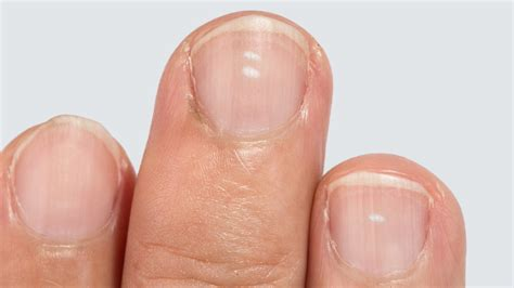 white spots on nail beds what the white spots on your fingernails reveal about your