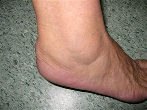tendinite caviglia interna pictures info calcaneal bursitis