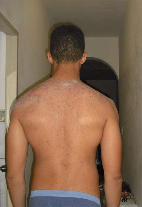back tattoo zit bacne scars need help bacne pictures videos acne
