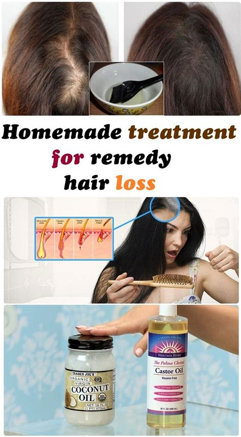 Best Homemade Hair Loss Treatment | 17 best images about belleza on pinterest ingrown hairs