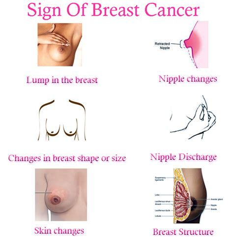 breast cancer breast cancer pictures sign of breast cancer