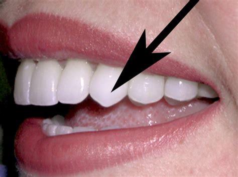 canine teeth different types of teeth sunningdale dental news views