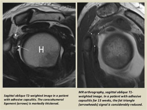 Sho N Shoulders presentation1 radiological imaging of adhesive capsulitis