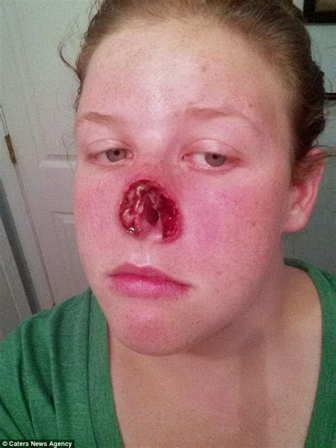 nose cancer knoxville records fight with deadly skin cancer daily mail